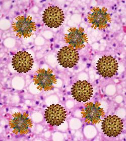 Test carga viral hepatitis B y C