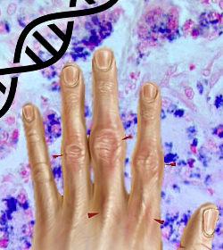 Test genético hemocromatosis