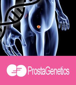 Test-genetico-prostata