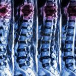 Análisis de polimorfismos en los genes TRPA1 y TRPV y relación con el riesgo de dolor neuropático en pacientes con lesión medular tras un accidente de trabajo