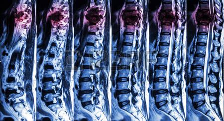 40815750-resonancia-magnetica-de-columna-lumbar-y-toracica-mostrar-la-fractura-de-columna-toracica-y-comprimi